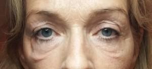 Augenringe-Volumenverlust, vorher