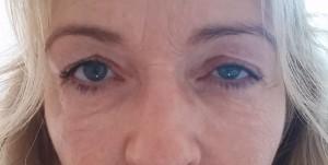Augenringe-Volumenverlust, nachher